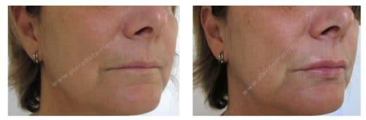 Trattamento di labbra sottili con filler di acido ialuronico - Dott. Piero Notarrigo - Medicina Estetica San Lazzaro di Savena (BO)