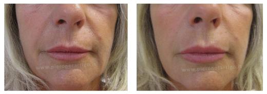 Aumento del tono e del turgore delle labbra - Dott. Notarrgio - Medicina Estetica San Lazzaro