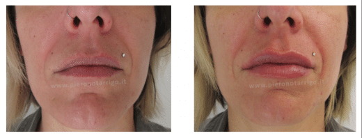 Aumento volume labbra Dott. Notarrigo Medicina Estetica Bologna