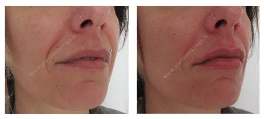 Aumento volume labbra Dott. Notarrigo Medicina Estetica San Lazzaro