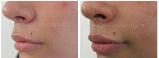 Aumento-del-volume-delle-labbra-con-acido-ialuronico-Dott.-P-Notarrigo-Medicina-Estetica-Bologna