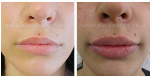 Aumento-del-volume-delle-labbra-con-acido-ialuronico-Dott.-Piero-Notarrigo-Medicina-Estetica-Bologna