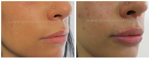 Aumento-del-volume-delle-labbra-con-acido-ialuronico-Dott.-Piero-Notarrigo-Medicina-Estetica-San Lazzaro