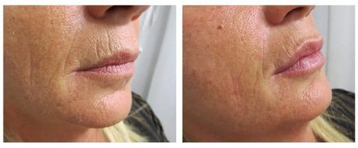Biostimolazione ringiovanimento viso Dott. Notarrigo Medicina Estetica San Lazzaro Bologna