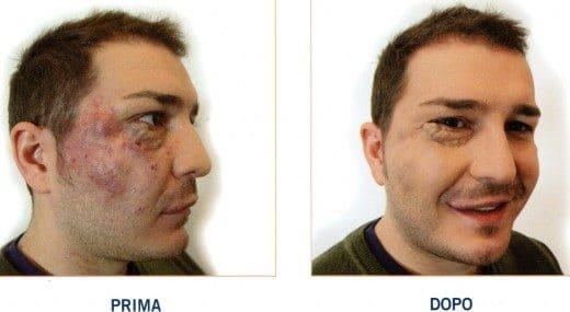 Camouflage Medico Angioma Dott. Notarrigo Medicina Estetica San Lazzaro Bologna