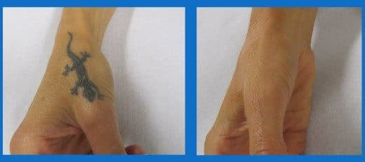Camouflage Medico Tatuaggio Dott. Notarrigo Medicina Estetica San Lazzaro Bologna