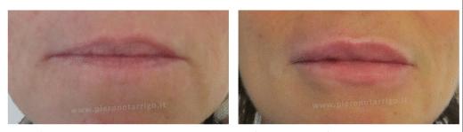 Correzione asimmetria labbro superiore - Dott. Notarrigo - Medicina Estetica San Lazzaro