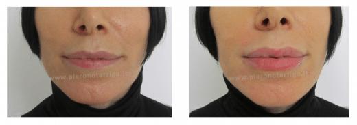 Correzione labbro inferiore. Dott. Notarrigo. Medicina Estetica Bologna