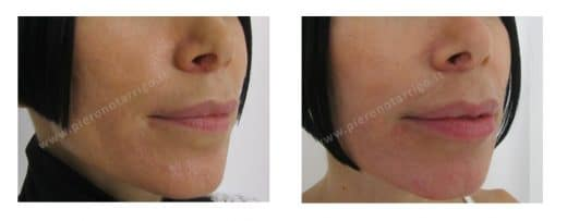 Correzione labbro inferiore. Dott. Notarrigo. Medicina Estetica San Lazzaro