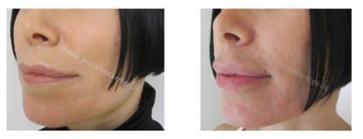 Correzione labbro inferiore. Dott. Piero Notarrigo. Medicina Estetica San Lazzaro