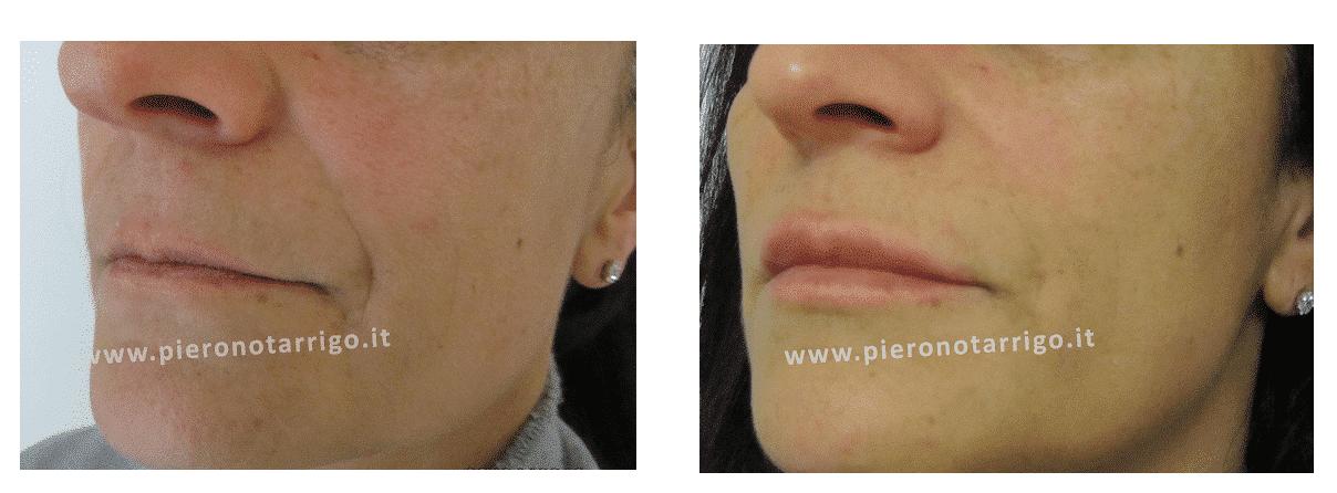 Filler labbra con acido ialuronico - Dott. Piero Notarrigo - Medicina Estetica Bologna
