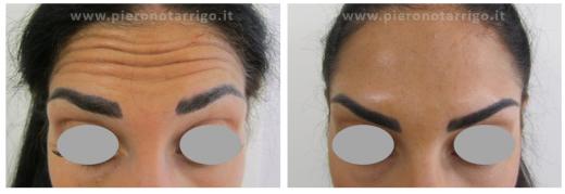 Effetto lifting della fronte con botulino - Dott. Piero Notarrigo - Medicina Estetica San Lazzaro