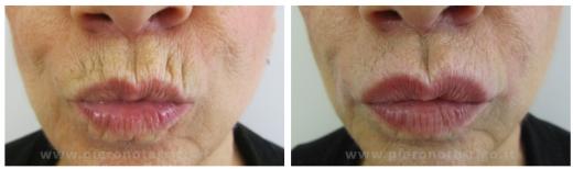 Eliminazione- rughe-labbro-superiore-CGStyler600-Dott.-Piero-Notarrigo-Medicina-Estetica-Bologna