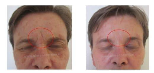 Evidente riduzione delle rughe glabellari con tossina botulinica - Dott. Notarrigo - Medicina Estetica San Lazzaro