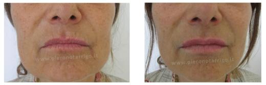 Evidente ringiovanimento delle labbra - Dott. Notarrigo - Medicina Estetica Bologna
