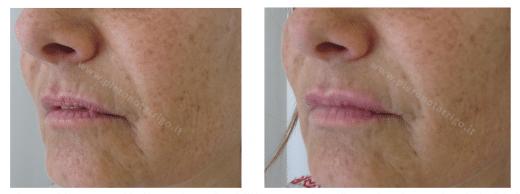 Evidente ringiovanimento delle labbra - Dott. Notarrigo - Medicina Estetica San Lazzaro di Savena (BO)