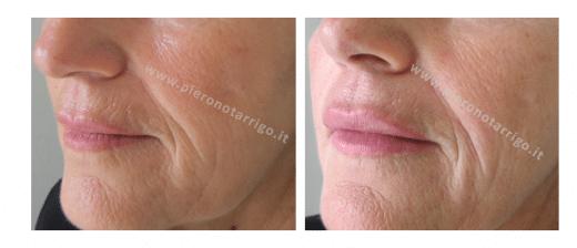 Filler labbra - Dott. Notarrigo - Medicina Estetica Bologna