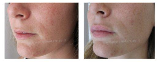 Filler labbra con acido ialuronico - Dott. Piero Notarrigo - Medicina Estetica San Lazzaro di Savena