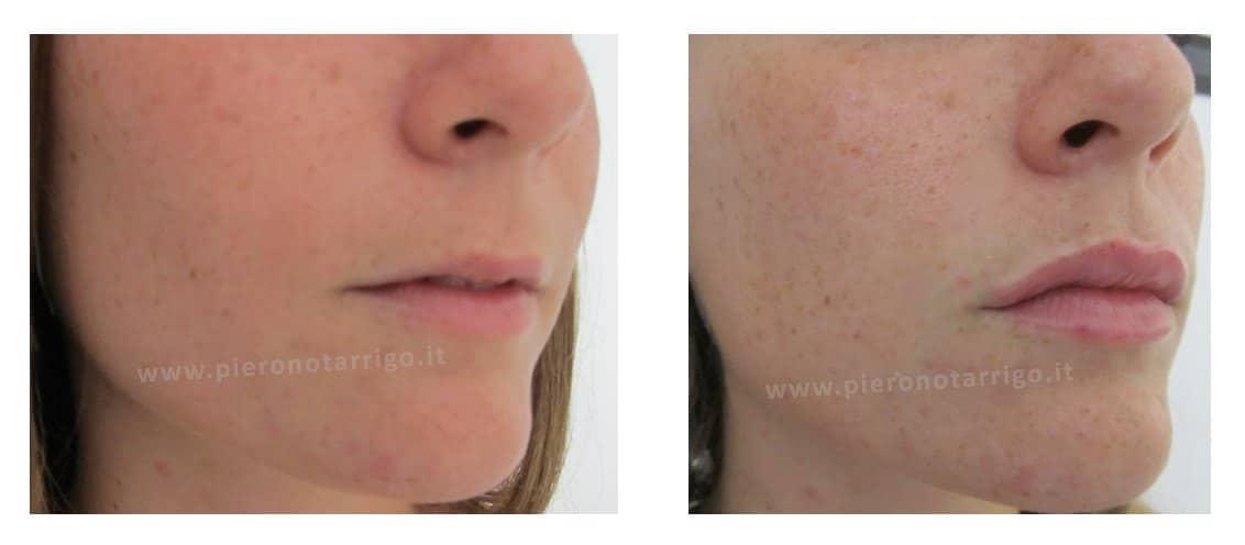 Filler labbra con acido ialuronico - Dott. Piero Notarrigo - Medicina Estetica San Lazzaro
