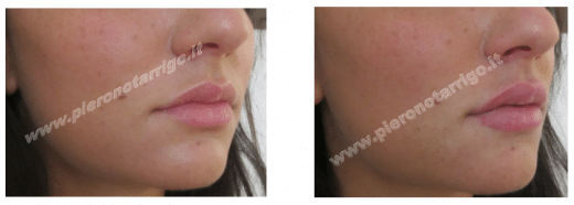 Gradevole aumento di volume delle labbra - Dott. Piero Notarrigo Medicina Estetica San Lazzaro Bologna -