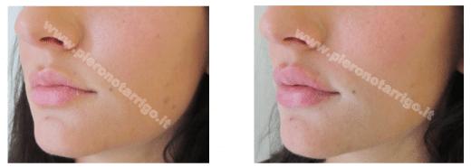 Gradevole aumento di volume delle labbra - Dott. Piero Notarrigo Medicina Estetica San Lazzaro di Savena Bologna -