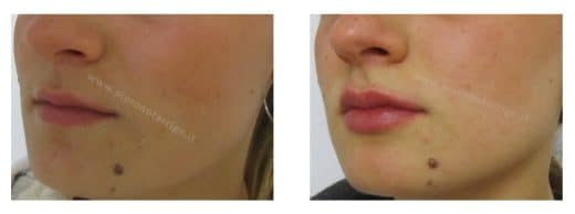 Ingrandimento labbra con acido ialuronico - Dott. Piero Notarrigo - Medicina Estetica San Lazzaro