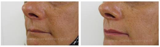 Labbra-rimpolpate-Dott.-Piero-Notarrigo-Medicina-Estetica-San-Lazzaro