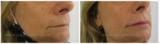 Labbra-rimpolpate-Dott.-P-Notarrigo-Medicina-Estetica-Bologna
