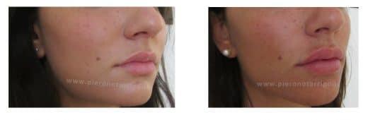 Lieve aumento di volume delle labbra - Dott. Piero Notarrigo - Medicina Estetica San Lazzaro