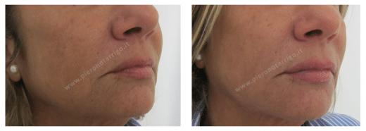 Lieve aumento di volume delle labbra e rivitalizzazione regione periorale. Dott. Notarrigo Bologna Medicina Estetica
