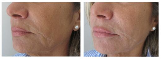 Lieve aumento di volume delle labbra e rivitalizzazione regione periorale. Dott. Notarrigo San Lazzaro Medicina Estetica