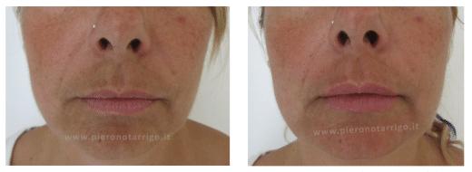 Lieve ingrandimento delle labbra con acido ialuronico - Dott. Notarrigo - Medicina Estetica Bologna