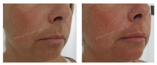 Lieve ingrandimento delle labbra con acido ialuronico - Dott. Notarrigo - Medicina Estetica San Lazzaro