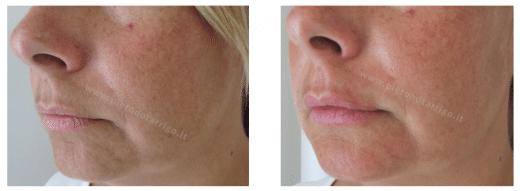 Lieve ingrandimento delle labbra con acido ialuronico - Dott. Piero Notarrigo - Medicina Estetica Bologna