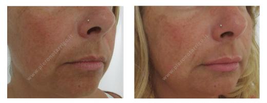 Lieve ingrandimento delle labbra con acido ialuronico - Dottor Piero Notarrigo - Medicina Estetica San Lazzaro