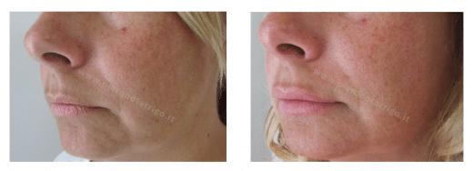 Lieve ingrandimento delle labbra con acido ialuronico - Dottor Piero Notarrigo - Medicina Estetica San Lazzaro di Savena