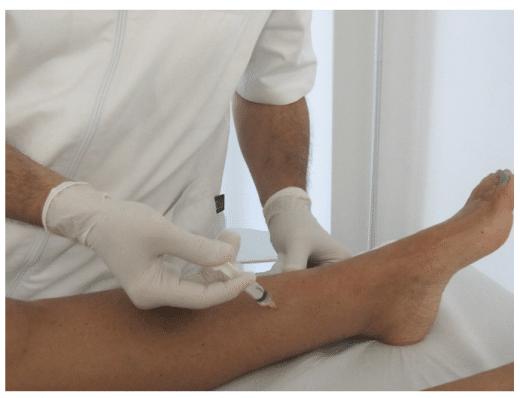 Mesoterapia/Intradermoterapia Dott. Notarrigo Medicina Estetica San Lazzaro Bologna