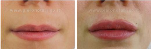 Moderato-aumento-volume-labbra-Dott.-Piero-Notarrigo-Medicina-Estetica-Bologna