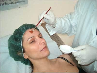 Peeling Dott. Notarrigo Medicina Estetica San Lazzaro Bologna