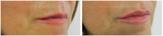 Raffinato-incremento-di volume-delle-labbra-Dott.-Piero-Notarrigo-Medicina-Estetica-San-Lazzaro