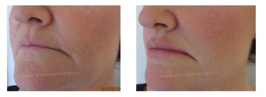 Ridefinizione delle labbra - Dott. Piero Notarrigo - Medicina Estetica San Lazzaro di Savena