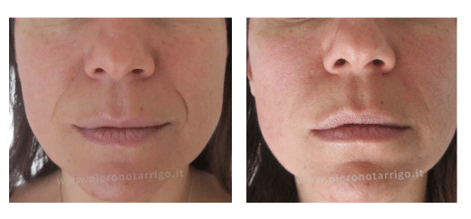 Riduzione dei solchi naso-labiali con filler di acido ialuronico - Dott. Piero Notarrigo - Medicina Estetica Bologna
