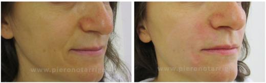 Riduzione solchi naso labiali - Dott. P Notarrigo - Medicina Estetica San Lazzaro