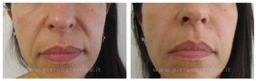 Riduzione solchi naso labiali - Dott. Piero Notarrigo - Medicina Estetica Bologna
