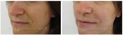 Riduzione solchi naso labiali - Dott. Piero Notarrigo - Medicina Estetica San Lazzaro