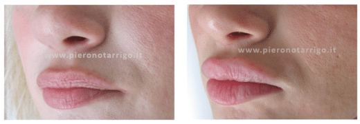 Aumento volume labbra - Dott Notarrigo - Medicina Estetica Bologna