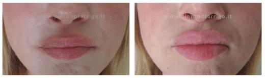 Riempimento labbra - Dott Notarrigo - Medicina Estetica Bologna