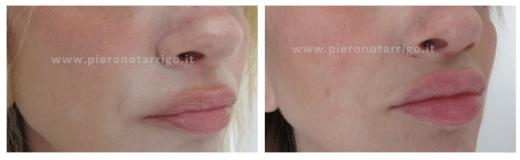 Riem[imento labbra - Dott Notarrigo - Medicina Estetica San Lazzaro