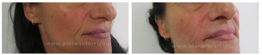 Riempimento solco naso-labiale - Dott. Piero Notarrigo - Medicina Estetica Bologna