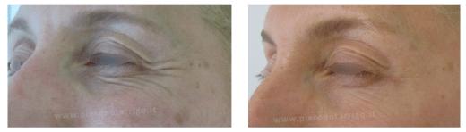 Ringiovanimento del contorno occhi con botulino - Dott. Notarrigo - Medicina Estetica Bologna